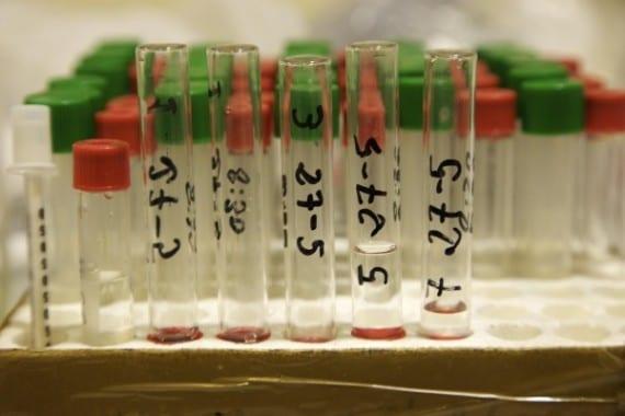 analisis de sangre