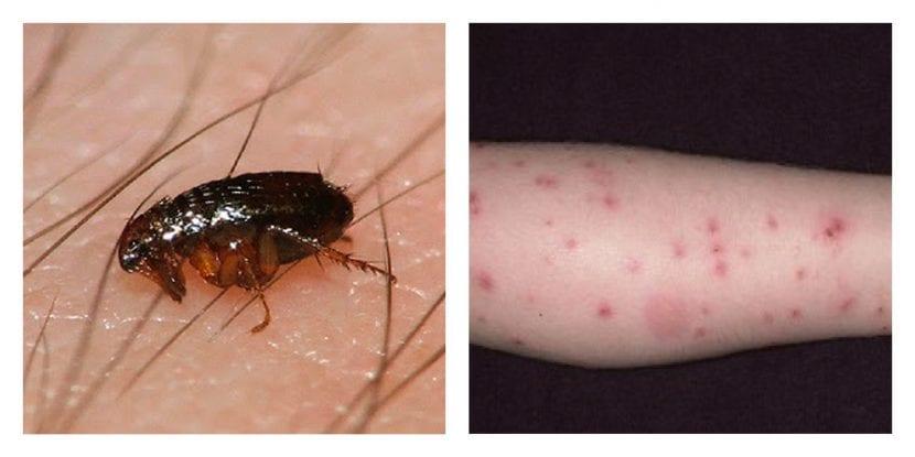 Picadura de pulga
